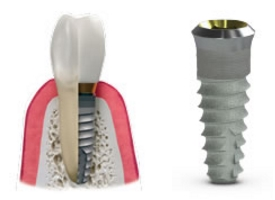 Hybridge Dental Implants