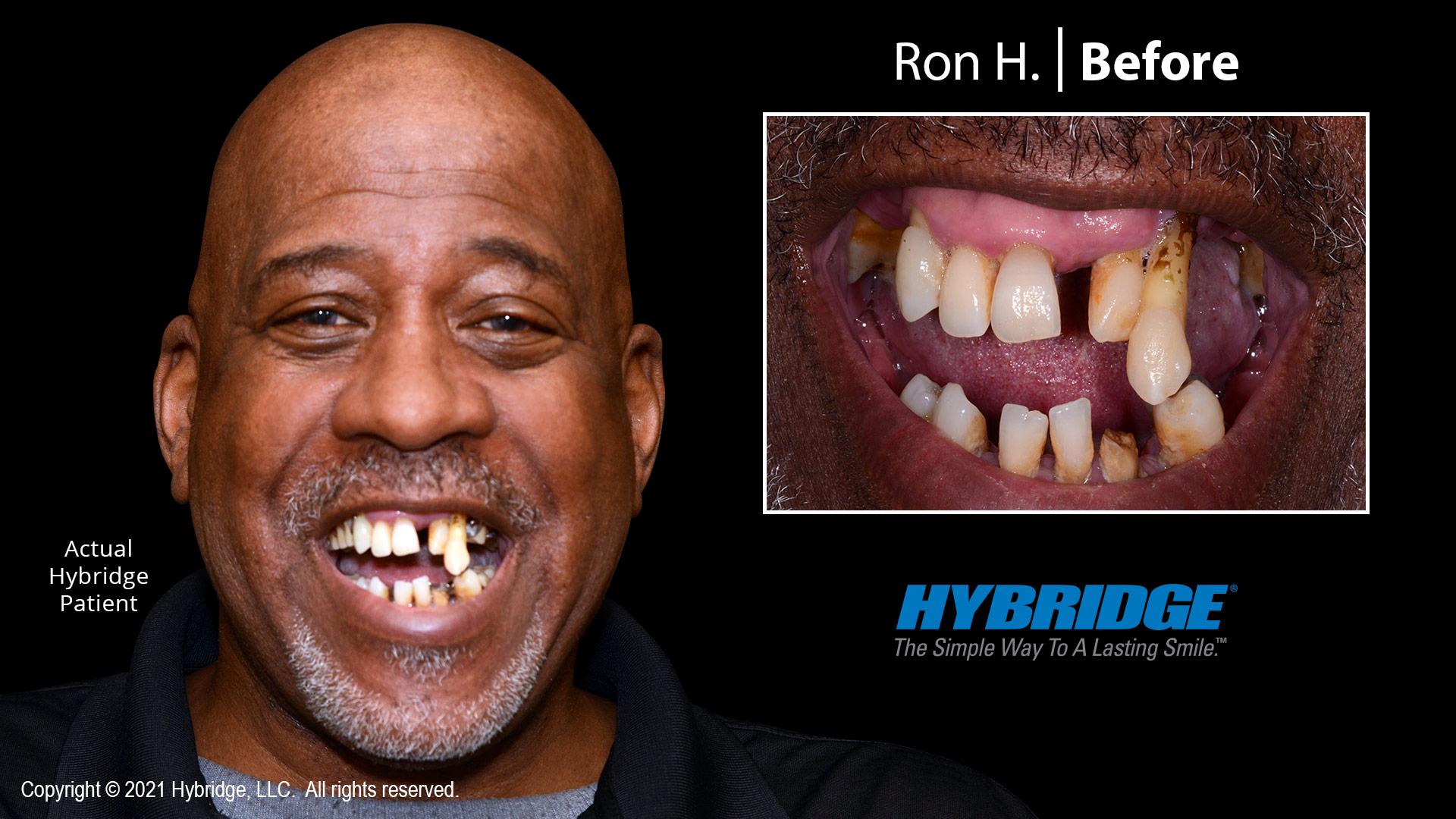 Hybridge-Smile-Gallery_Before_Ron-H_1920x1080