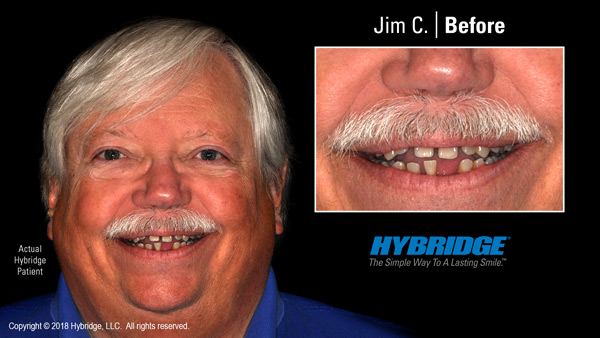 Hybridge_Jim_C_Before_600x338