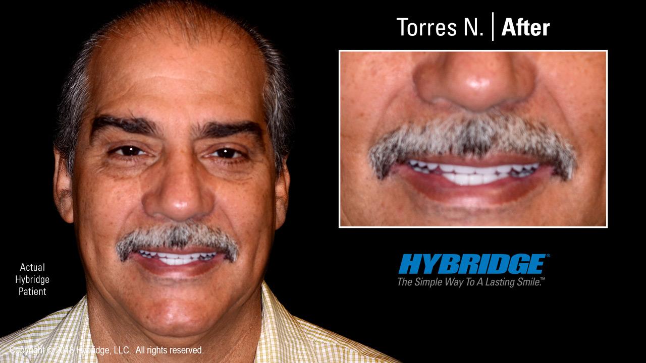 Hybridge_Torres_N_After