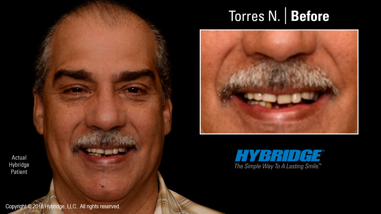 Hybridge_Torres_N_Before