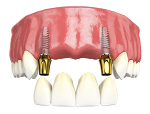 Hybridge Dental Implant Multiple Tooth Replacement