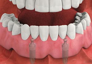 Dental Implant Overdentures