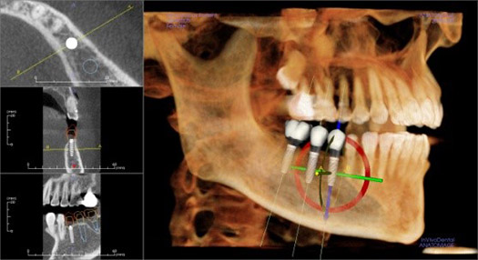 Hybridge Dental Implant Surgical Planning